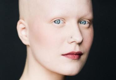 Люди, у которых отсутствуют брови: культурные и физиологические особенности
