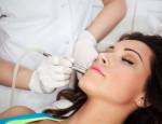 Преимущества и эффективность удаления татуажа губ лазером