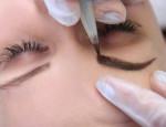 Возможные последствия после татуажа: аллергия и отеки