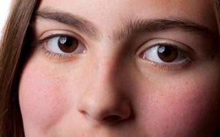 Синофриз: причины срастания бровей