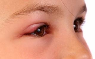 Как вылечить халязион у ребенка: советы врача Комаровского