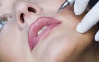 Методики обезболевания губ при процедуре татуажа