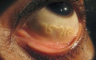 Как правильно диагностировать и лечить филяриоз