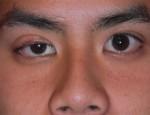 Что такое лагофтальм глаза: причины появления и методы лечения