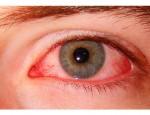 Первая помощь и лечение химического ожога глаза после наращивания ресниц