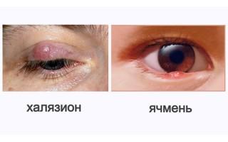 Чем отличается ячмень от халязиона: внешние признаки
