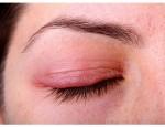 Какие признаки воспаления века глаза и как его лечить