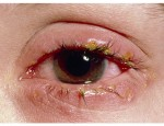 Блефарит век: особенности лечения различных видов заболевания