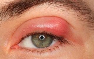 Блефарит глаз: симптоматика и причины