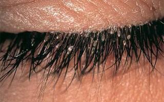 Могут ли появиться вши на ресницах: симптомы, причины и лечение лобковых вшей