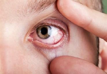 Увеит: особенности симптоматики заболевания различного вида