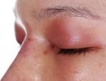 Аллергия с проявлением на веках: причины и провоцирующие факторы