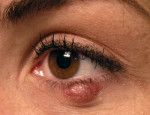 Эффективность и противопоказания к лечению халязиона инъекциями