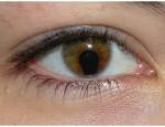 Что такое колобома радужной оболочки глаза и насколько опасно заболевание