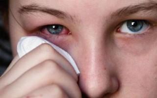 Покраснение глаз после наращивания ресниц – норма или повод обратиться к врачу