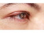 Как лечить блефарит: обзор лекарственных препаратов