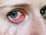 Симптомы и причины появления увеита