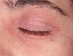 Как снять аллергические проявления на веках: обзор методов лечения