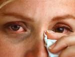 Что вызывает аллергию век и как от нее избавиться: провоцирующие факторы