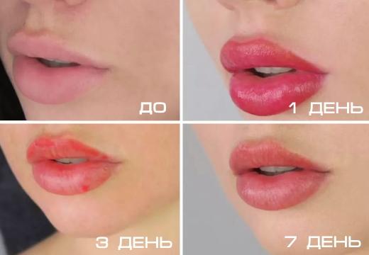 как заживает татуаж губ