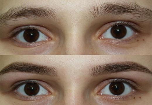 до и после эпиляции