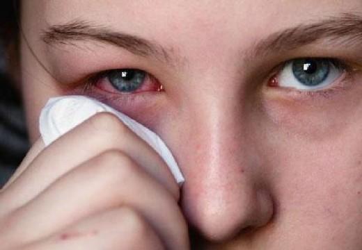 После наращивания ресниц покраснел глаз внизу и болит