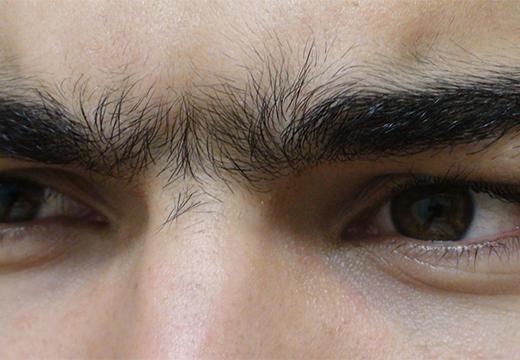 волосы на переносице у мужчины