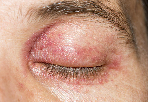 Контактный дерматит на веках