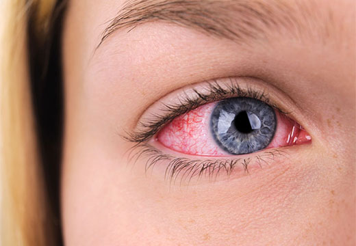 Покраснение глаза после ожога