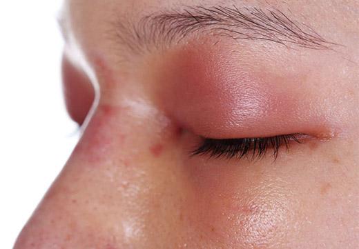 Аллергия на веке глаз фото — Аллергия и все о ней