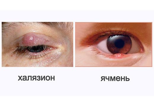 Отлияи ячменя от халязиона