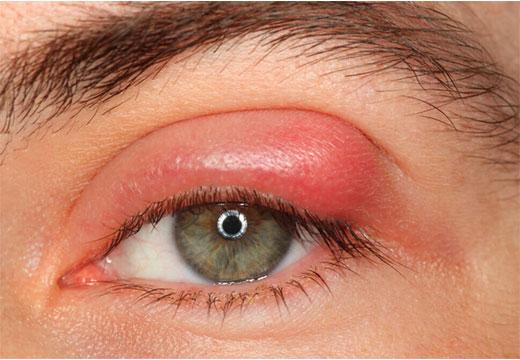блефарит глаз