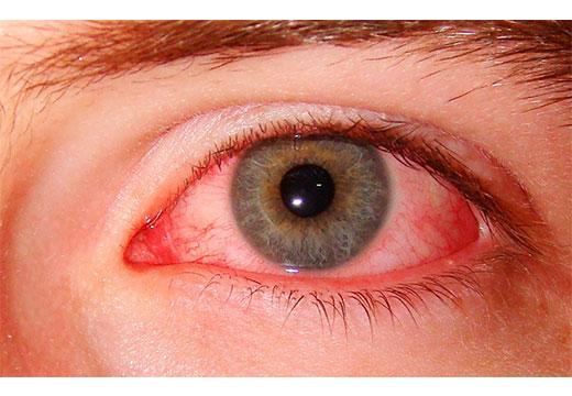 После наращивания ресниц красные глаза