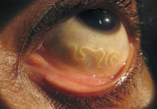 глаз с паразитом