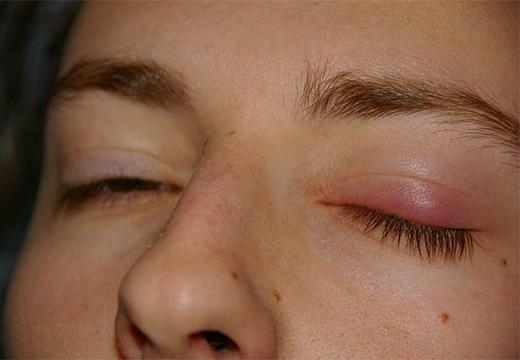глазное заболевание