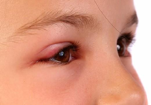 воспаление на глазе