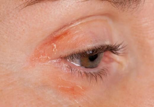 воспаление вокруг глаза