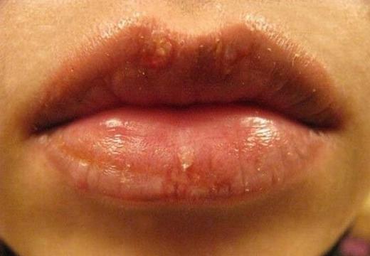 губы с герпесом