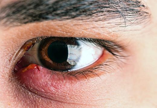 Что делать если халязион порвался сам наружу: опасен ли он
