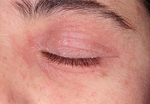 Аллергия на веках чем лечить