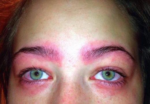 аллергия на татуаж