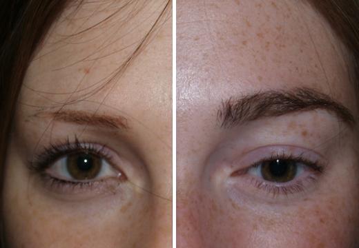 пересадка волос на брови до после