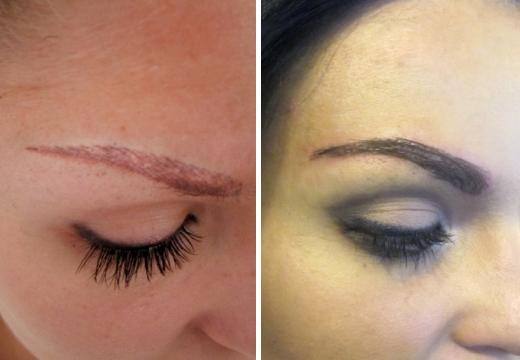 трансплантация волос на брови результат