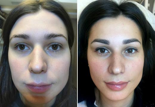 татуаж лица до и после
