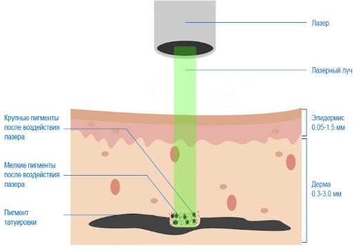 Механизм действия лазера