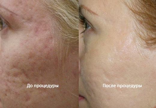 Маскировка шрамов