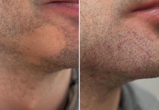 татуаж бороды до после