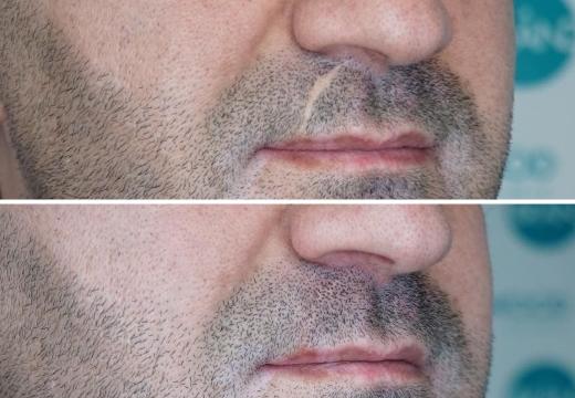 микропигментация шрама на усах