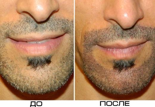 микропигментация усов и бороды