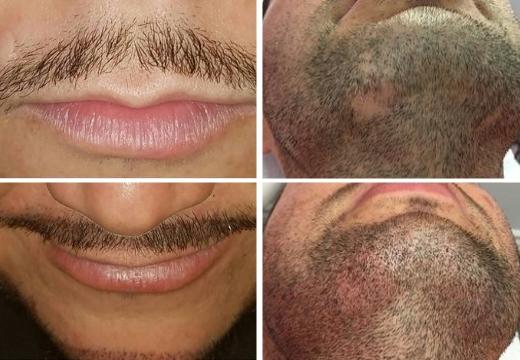 микробейдинг усов бороды